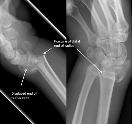 Distal end of radius fractures