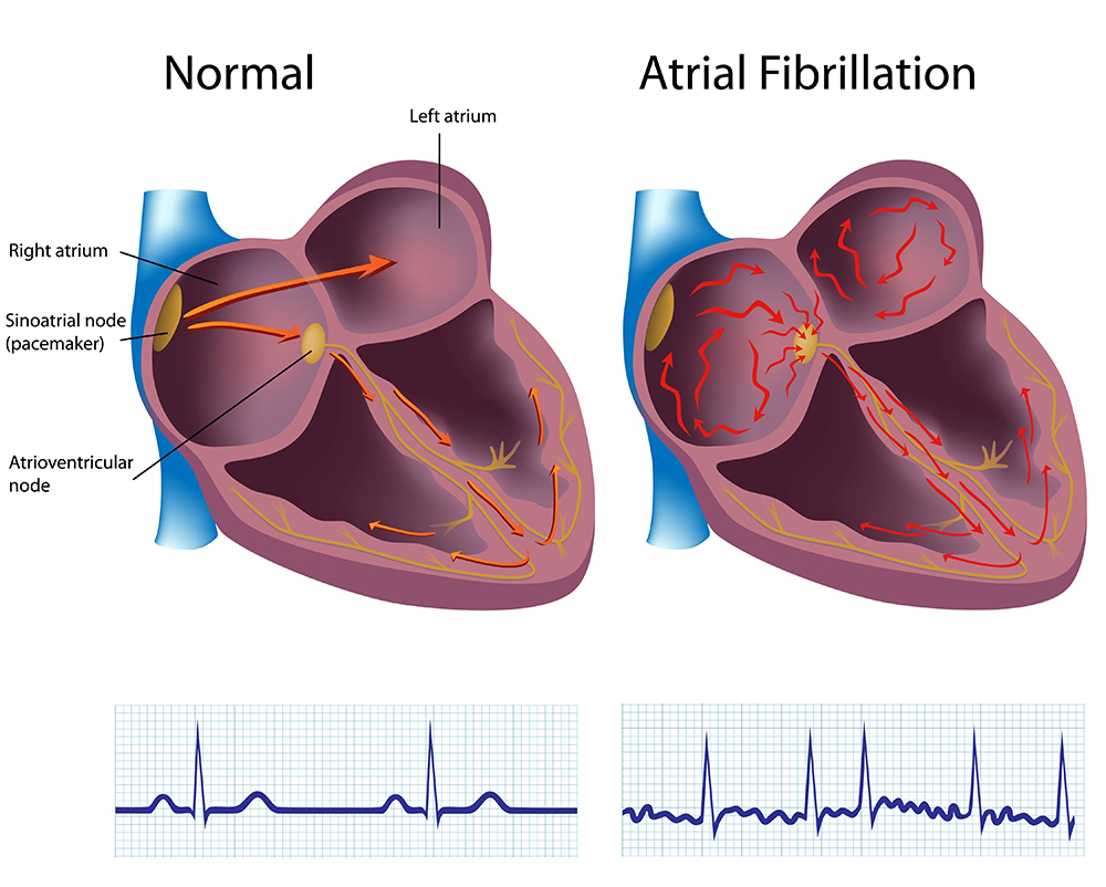 normal & atrial fibrillation