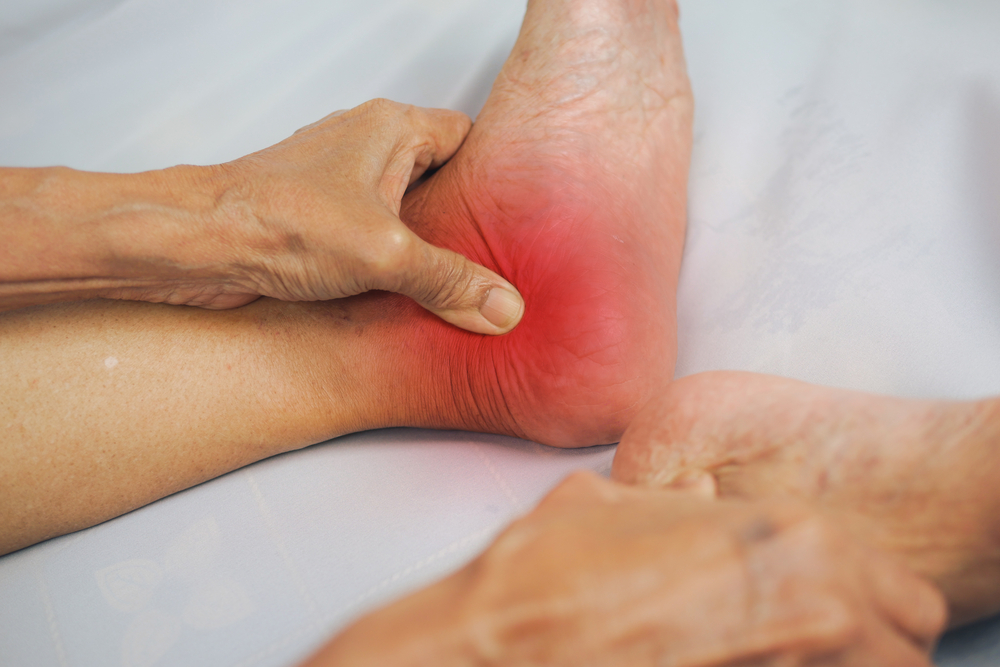 Treatment for ankle arthritis