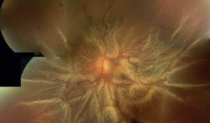 Advanced detachment of the retina
