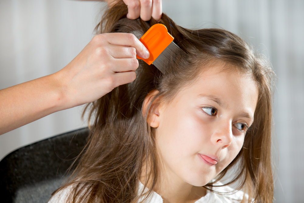 Tips to battle head lice